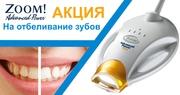 Отбеливание Зубов Аппаратом